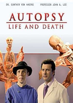 Image: Autopsy-Life-and-Death-Cover.jpg