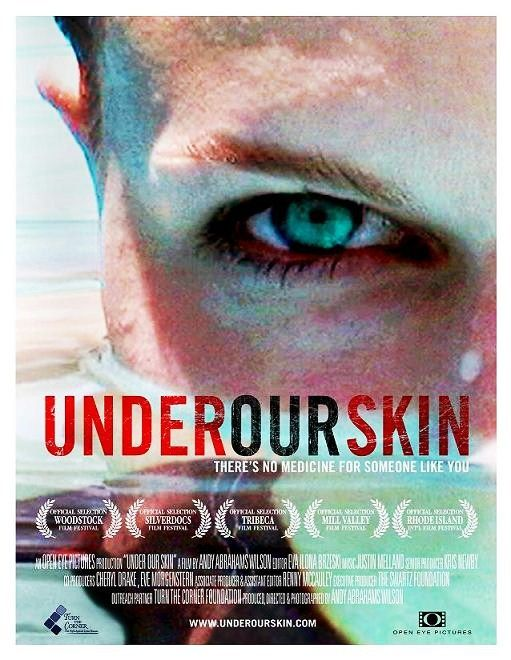 Image: Under-Our-Skin-Cover.jpg
