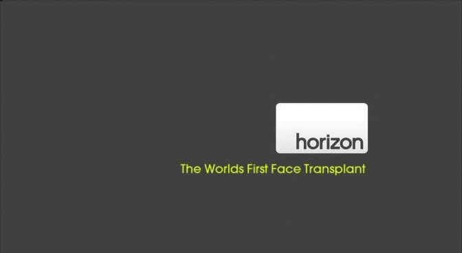 Image: World-s-First-Face-Transplant-Cover.jpg